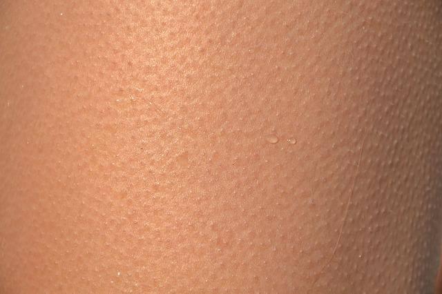 त्वचा